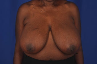 62 year-old woman desired bilateral breast reduction before 647695