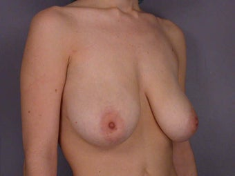 Breast Lift before 285363