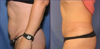 Mini Tummy Tuck after 98608