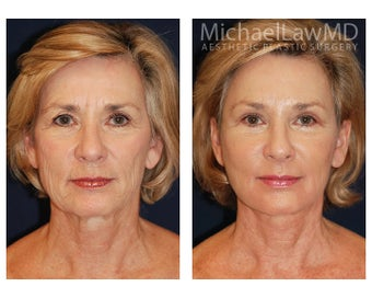Facial Rejuvenation after 395154