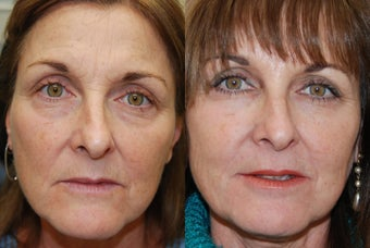 Non-Surgical Facial Rejuvenation with Silikon-1000 and Botox Cosmetic. before 267593