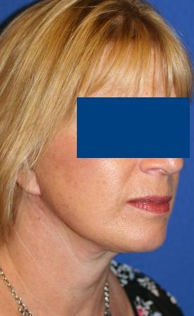 Facelift for Female, 56 after 106040