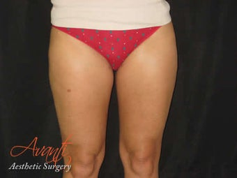 Smart Lipo - Outer Thighs after 379515