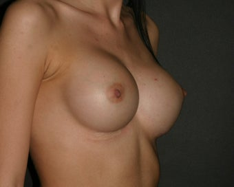 Breast Augmentation after 314102