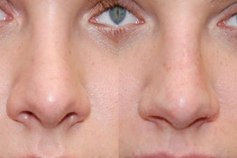 Non-Surgical Rhinoplasty. Front view. before 170671