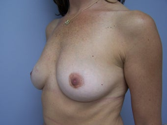 Breast Implant Removal 589955