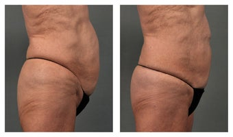 CoolSculpting Abdomen before 541959