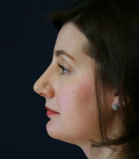 Rhinoplasty (nose reshaping) after 272588