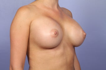 Breast Augmentation after 338711