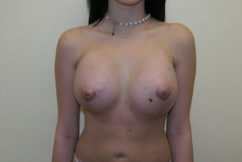 Breast augmentation after 365698