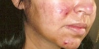 Acne Treatment with Smoothbeam before 271998