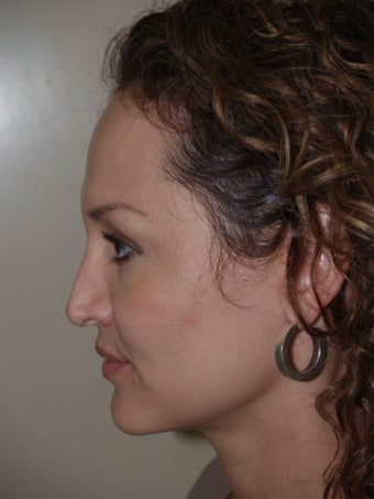 Revision Rhinoplasty 330464