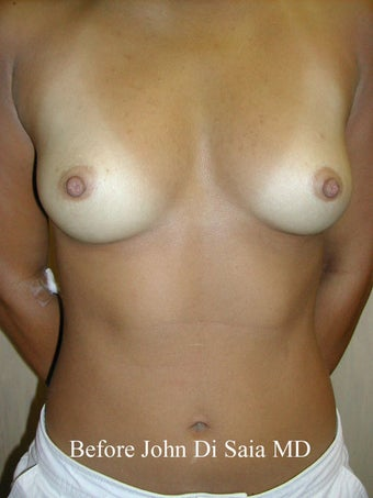 Breast Augmentation before 119701