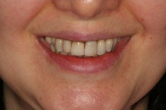 Anterior all-ceramic crowns and implant crowns before 316681