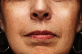 Sculptra after 346266