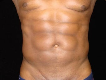 Liposuction of Abdomen, Waist, Flanks with 6 Pack Abdominal Etching after 203523