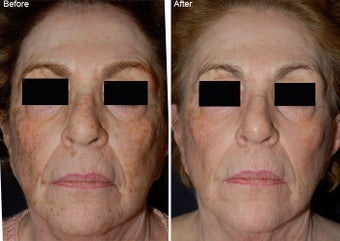 Fraxel Laser Resurfacing with Obagi NuDerm before 97771