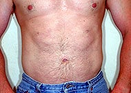 Liposuction after 74772