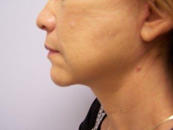 Face and Neck Lift after 625563