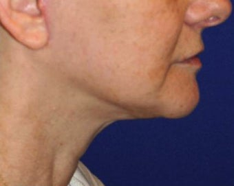 Neck lift surgery after 526353