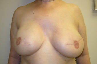 Breast Reconstruction after 273946