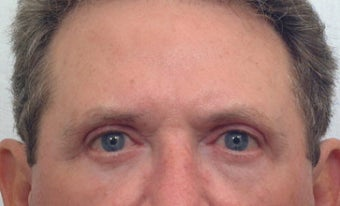 Blepharoplasty (eyelid) after 106513