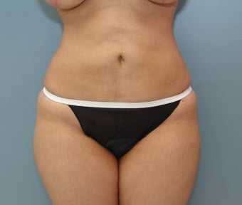 Liposuction to Full Abdomen and Full Back after 426734