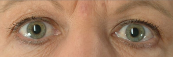 Botox for Wrinkle Treatment before 100338