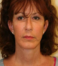 Face and Necklift, Eyelids, Temporal Browlift after 232351