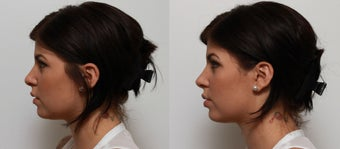Non Surgical Nose Job Rhinoplasty 553496