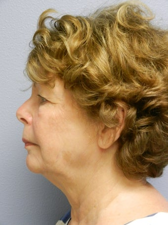 Lower Face with Neck Lift 598901