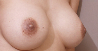 Nipple Reduction after 185131