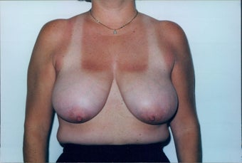 Breast Reduction before 218953