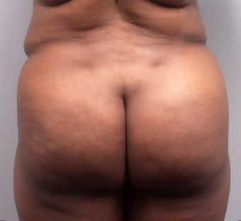 Butt Augmentation after 273288
