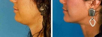 Chin Liposuction before 640723