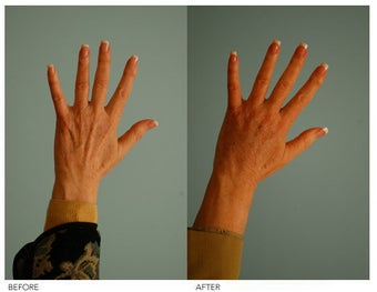Hand Rejuvenation (with Fat Transfer) before 136423