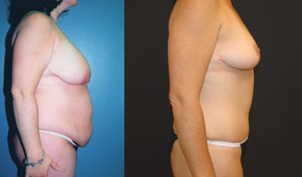 Breast Lift, Tummy Tuck and Liposuction before 350986