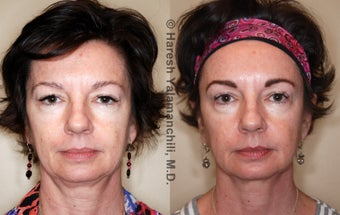 Sculptra before 460382