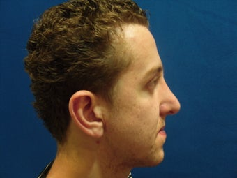 Rhinoplasty after 214625