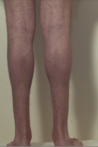 Calf implants after 109607