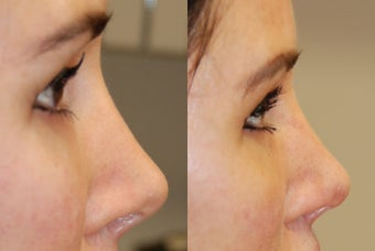 Non-Surgical Rhinoplasty with Silikon-1000 before 287449