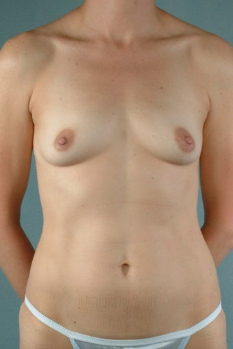 Breast Augmentation  before 240407