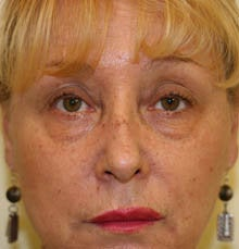 blepharoplasty (eyelids) before 219354