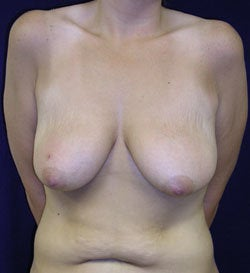 Breast Lift -without implants before 540739