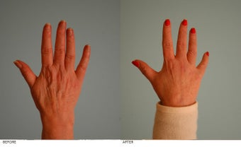 Hand Rejuvenation (with Fat Transfer) before 153641