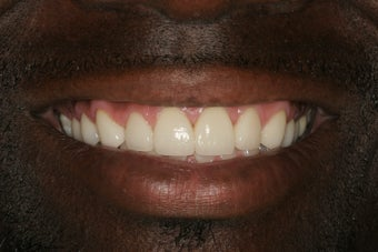 Porcelain Veneers after 213078