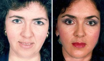Cheek Lift and Augmentation before 296656