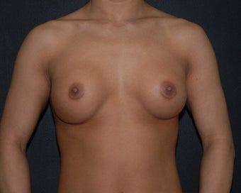 breast implant revision before 334108