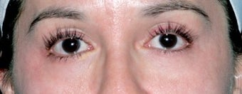 Latisse for Eyelashes after 374415
