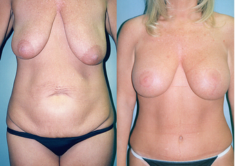 Tummy Tuck + Liposuction + Breast Lift + Implants before 350996